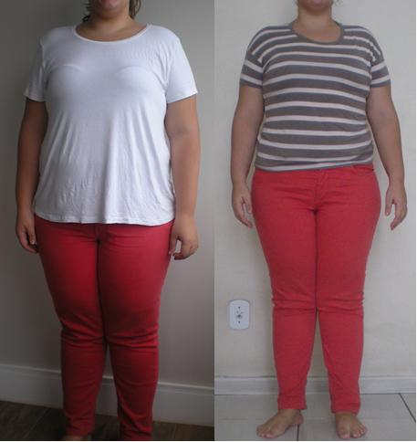 Antes e Depois, 1 mês de cirurgia bariátrica.